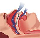 imagen - apnea del sueño